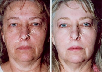 Non-Surgical Face Lift- Exoderm  before 242982