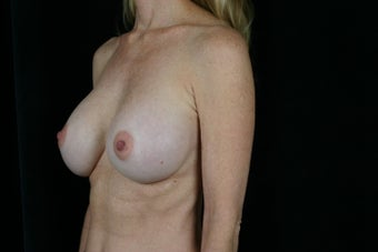 Breast Revision after 307212