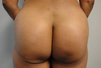 Brazilian Butt Lift  after 562458