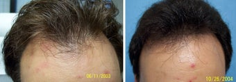 Medical treatment for hair loss (no surgery) before 369189