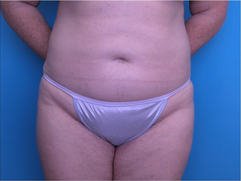 Abdominal Liposuction after 266092