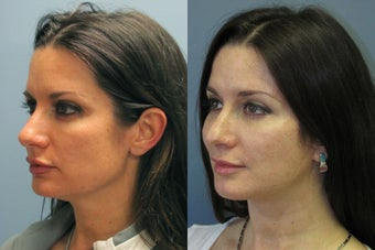 Lite Lift, Brow Lift before 523333