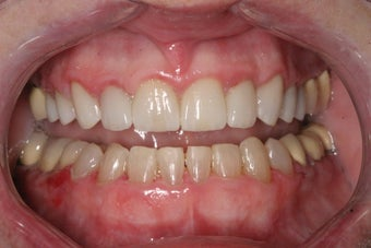 "Short Term Orthodontics aka ""6 Month Smiles"" after 367185"