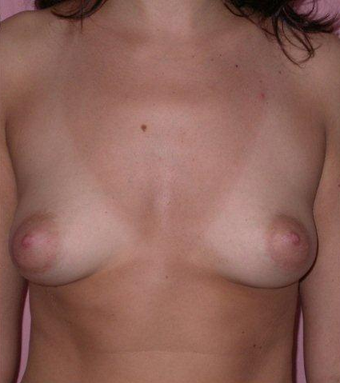 Breast Augmentation / Lift before 355734