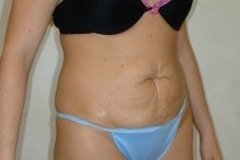 Tummy Tuck  before 215070