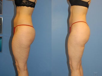 Liposuction before 636184