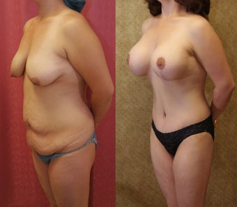 Mommy make over- breast augmentopexy, tummy tuck, with liposuction of flanks before 587840
