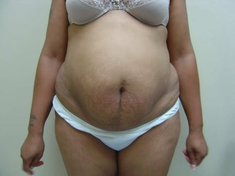 Tummy Tuck before 504649