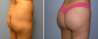 Brazilian Butt Lift (Fat Transfer) Brazilian Butt Lift