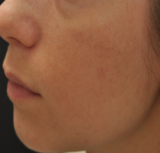 Acne Scarring after 426034