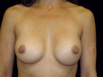 Breast Implant Replacement before 506017