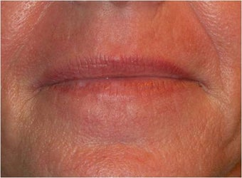 Active & Deep FX ~ CO2 Laser Skin Resurfacing after 130744