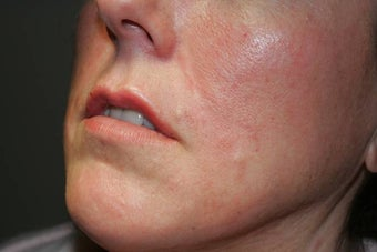 Fillers - Cosmoderm after 136204