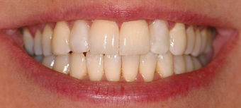 Invisalign, whitening, bonding after 119940