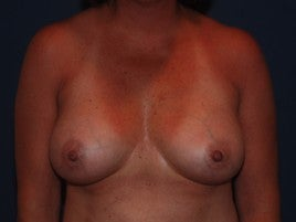 Breast Augmentation after 555989