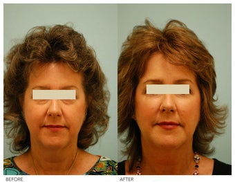 Injectable Fillers (Restylane/Perlane) before 136782