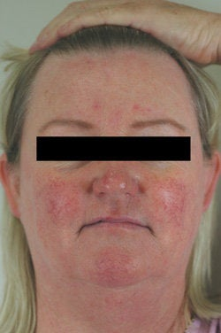 Rosacea and Facial Spider Veins before 106541