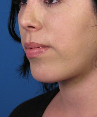 Chin Implant after 534045