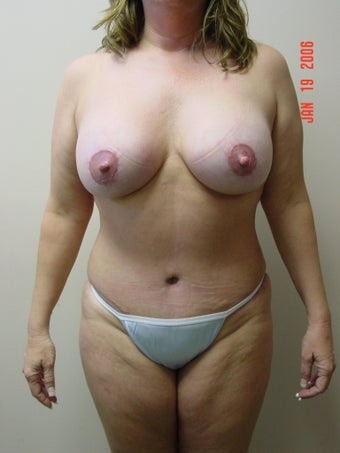tummy tuck, flank liposuction, breast augmentaion & breast lift after 319724
