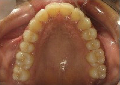 Invisalign Treatment after 346618