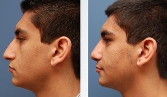 Rhinoplasty before 346243