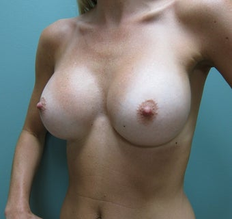 Breast Augmentation 383300