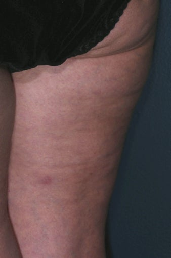 Cellulite treatment after 113275