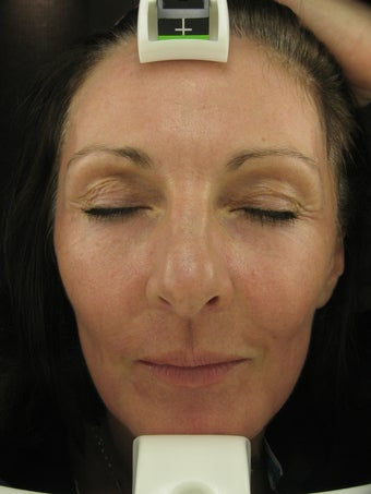 Fraxel re:pair CO2 laser resurfacing treatment after 43466