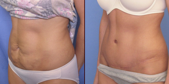 Abdominoplasty before 239133