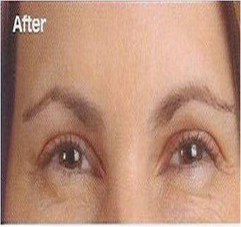 Botox after 395287