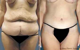 Tummy Tuck before 144983