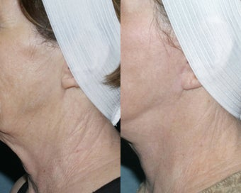 Fraxel repair for neck with laser peel treatment before 104649