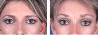 Brow lift at age 39 before 6652