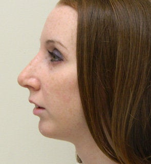 Rhinoplasty after 612288