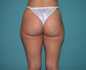 Liposuction of flanks and outer thighs before 255683
