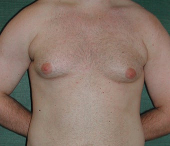 Gynecomastia treated by Liposuction before 117049