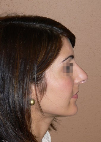 Rhinoplasty/nose job surgery before 597696