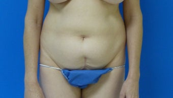 Tummy Tuck before 567619