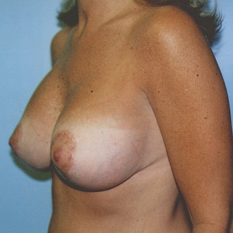 Vertical Breast Lift with Saline Implants after 270956