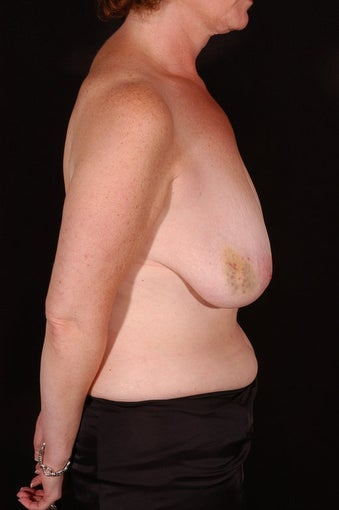Breast Reconstruction and Reduction before 163997