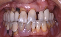 Dental Implants before 510605