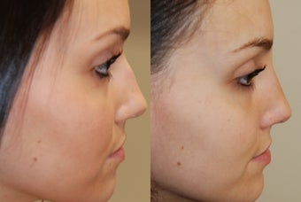 Non-Surgical Rhinoplasty with Silikon-1000 before 257683