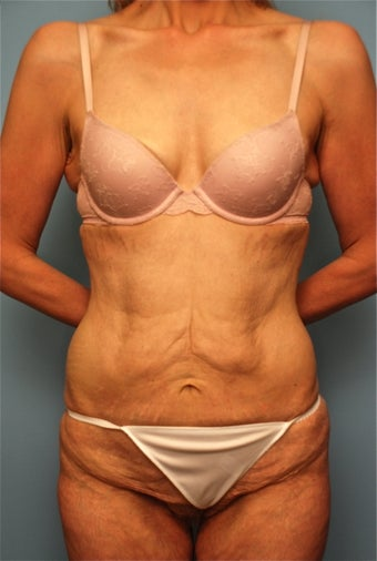 Tummy Tuck without muscle tightening before 259127