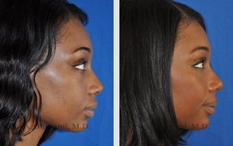 African American Ethnic Rhinoplasty after 487997
