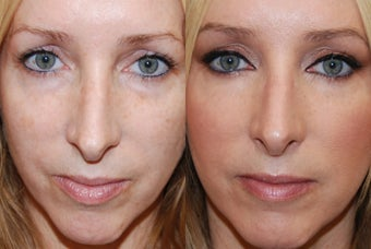 Lower eyelid rejuvenation with Silikon-1000 before 228583