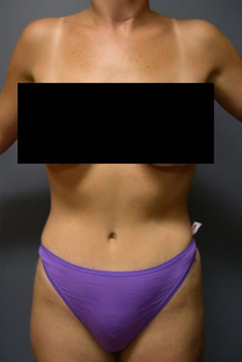 Tummy Tuck after 531160