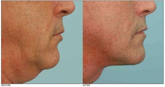 Neck Rejuvenation before 136628