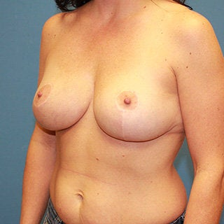 Breast reduction 375033
