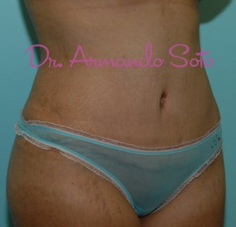 Abdominoplasty (Tummy Tuck) after 207532