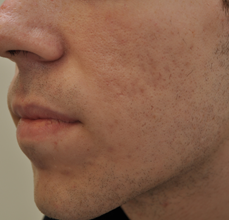 Acne Scarring 426025